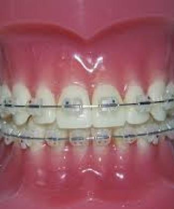 Orthodontics I