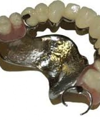 Metal partial dentures –I